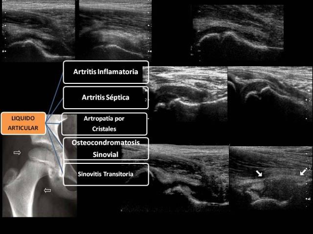 artritis septica rodilla ultrasonido